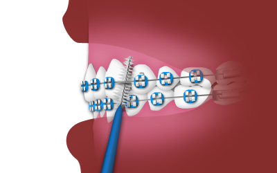 interdental toothbrush